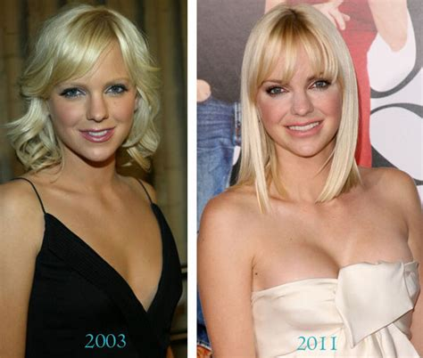 Anna Faris Boob Job Before And After Plastic Surgery