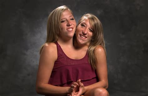 Conjoined Twins Abby And Brittany Hensel – Encourage